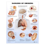 Dangers of Smoking Anatomical Chart.jpg
