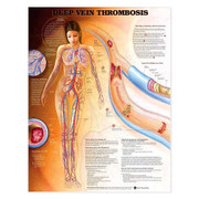 Deep Vein Thrombosis Anatomical Chart.jpg