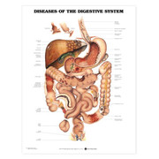 Diseases of the Digestive System Anatomical Chart.jpg