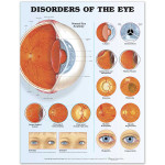 Disorders of the Eye Anatomical Chart.jpg