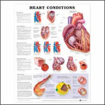 Heart Conditions Anatomical Chart.jpg