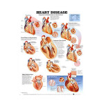 Heart Disease Anatomical Chart, 2nd Edition.jpg