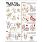 Hip and Knee Inflammations Anatomical Chart.jpg