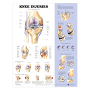 Knee Injuries Anatomical Charts.jpg