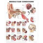 Middle-Ear-Conditions-Anatomical-Chart600.jpg