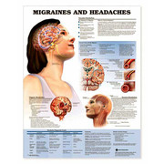 Migraines and Headaches Anatomical Chart.jpg