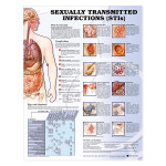Sexually Transmitted Infections (STIs) Anatomical Chart.jpg