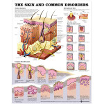 The Skin and Common Disorders Anatomical Chart.jpg