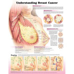 Understanding Breast Cancer Anatomical Chart.jpg