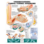 Understanding Carpal Tunnel Syndrome Anatomical Chart.jpg