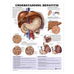 Understanding Hepatitis Anatomical Chart.jpg