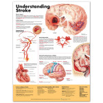 Understanding Stroke Anatomical Chart 2nd edition.jpg