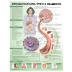 Understanding-Type-2-Diabetes-Anatomical-Chart600.jpg