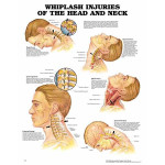 Whiplash Injuries of the Head and Neck Anatomical Chart.jpg