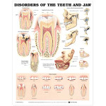 Disorders of the Teeth and Jaw Anatomical Chart.gif