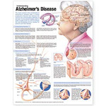 Understanding Alzheimer's Disease Anatomical Chart, 2nd Edition.jpg